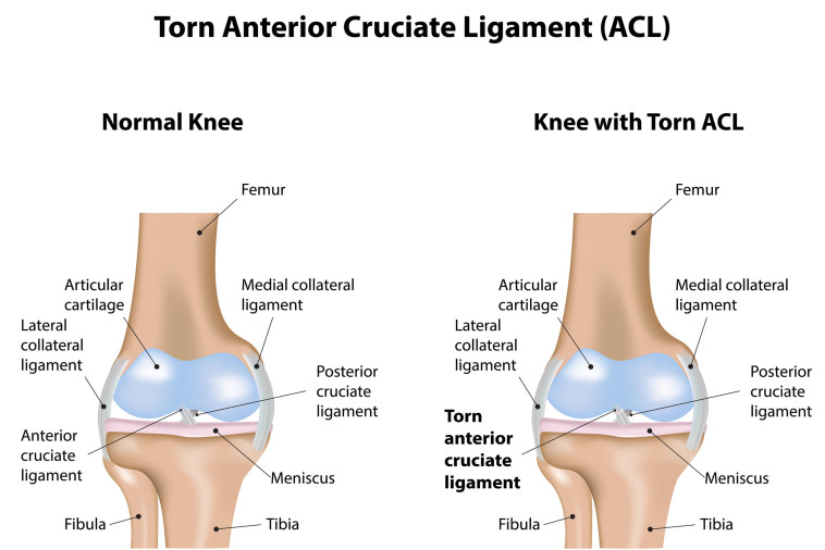 perth physio for acl rehab
