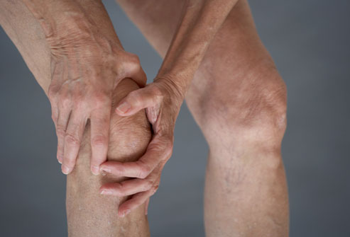 Perth Physiotherapy for Osteoarthritis
