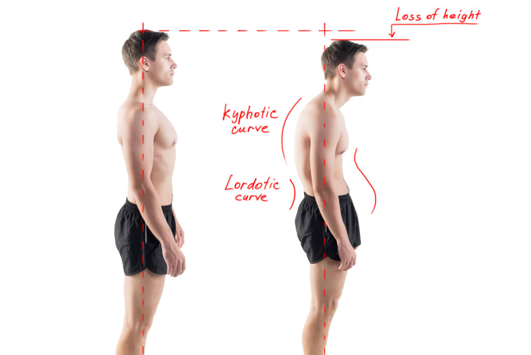 physiotherapy in north perth and leederville for posture